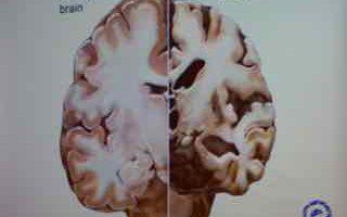 2833  hersenen heel en beschadigd